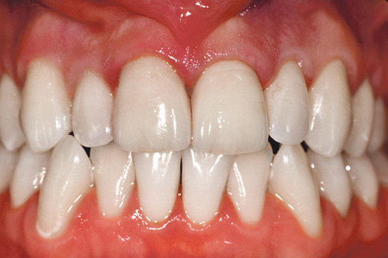 Abgebrochen zahn halb Brauche schnell